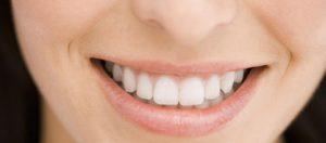 produit miracle sourire plus beau plus blanc